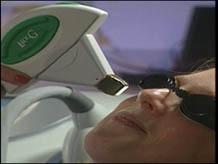 Zapping wrinkles away